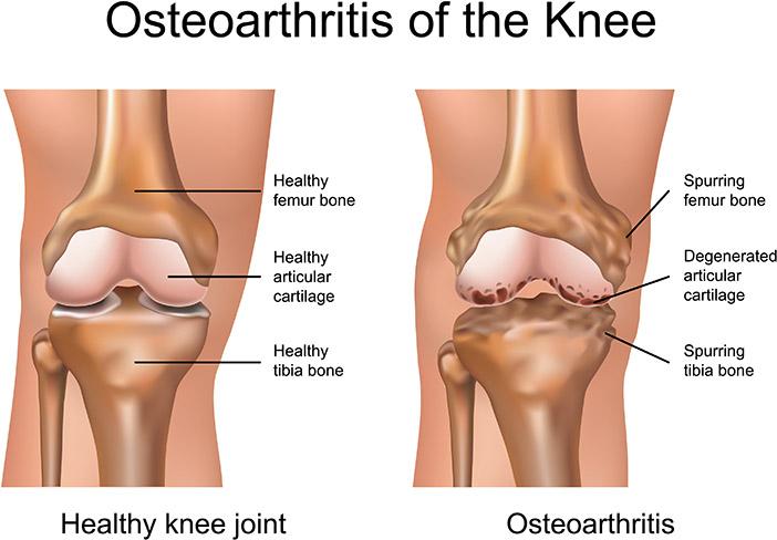 got osteoarthritis get moving the jewish voice